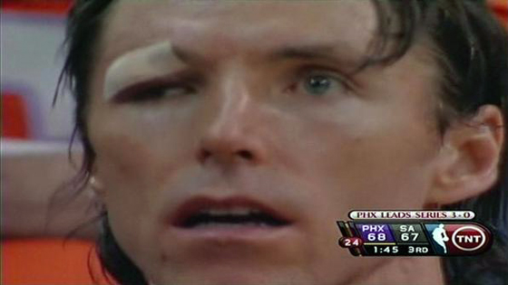 Steve Nash Eye Bandaid
